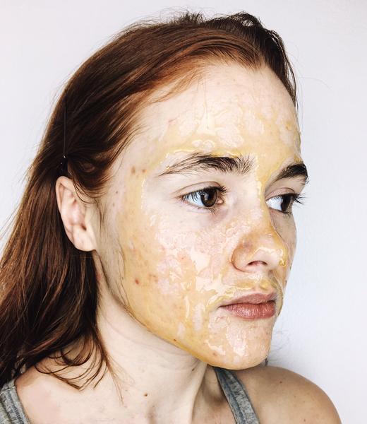Arcmaszk méz használata otthon pattanások ellen